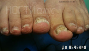 Грибок ногтей до лечения