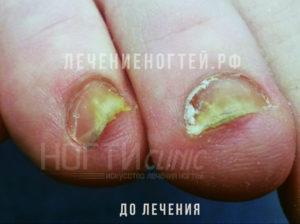 Грибок ногтей до лечения Ляшко А К отзывы