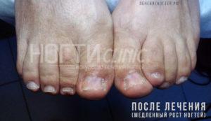 Грибок ногтей после лечения