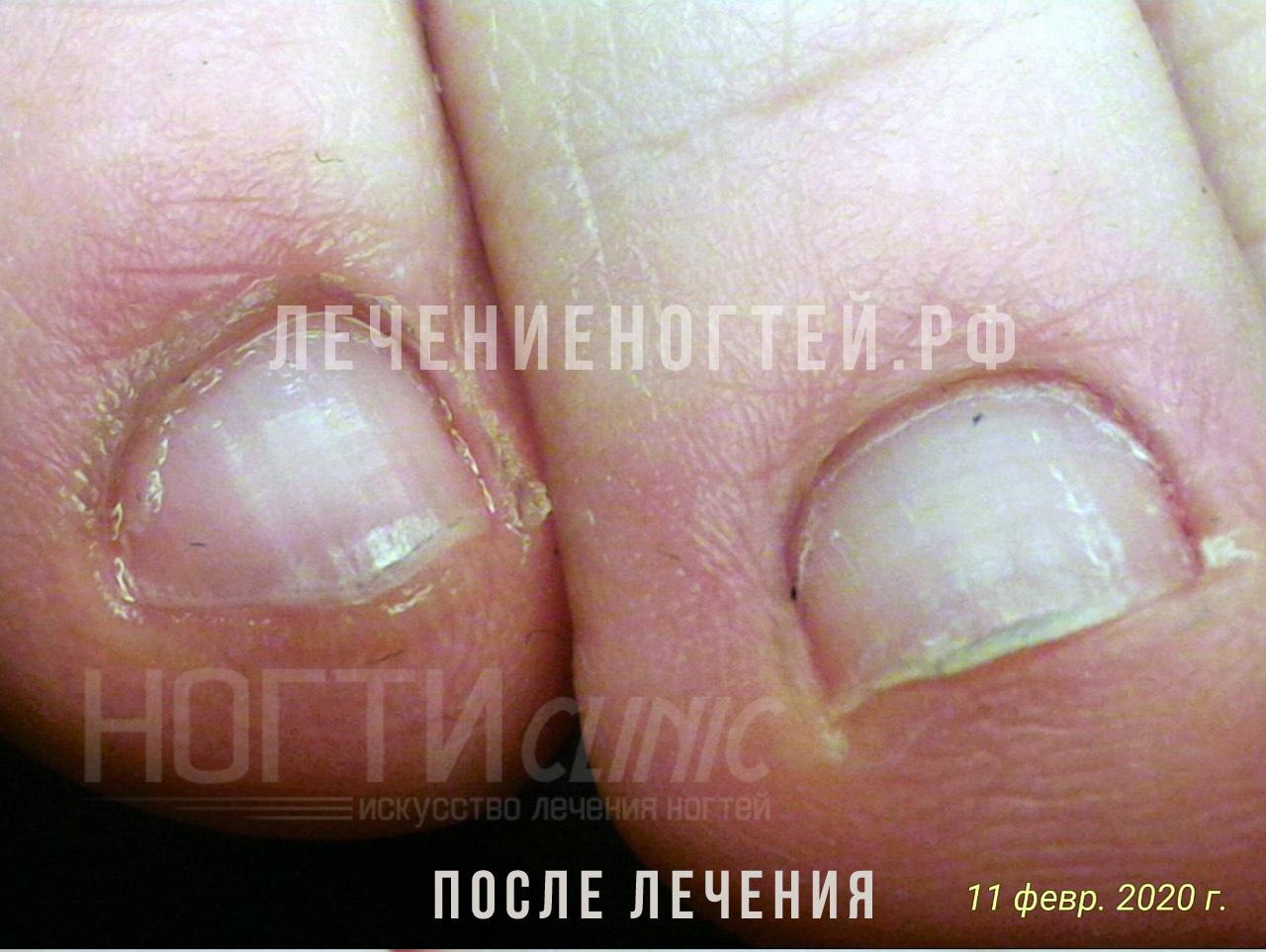 Грибок ногтей после лечения Ляшко А К отзывы