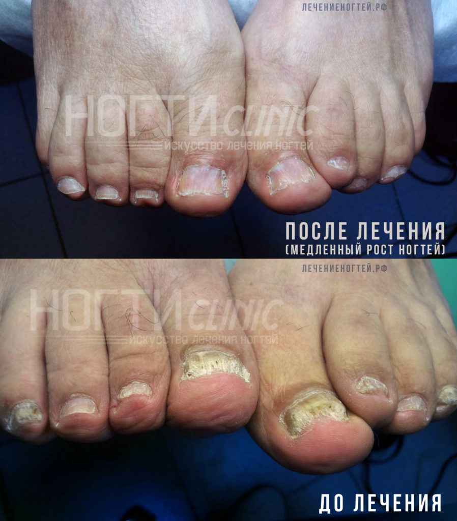 Грибок ногтей после лечения2
