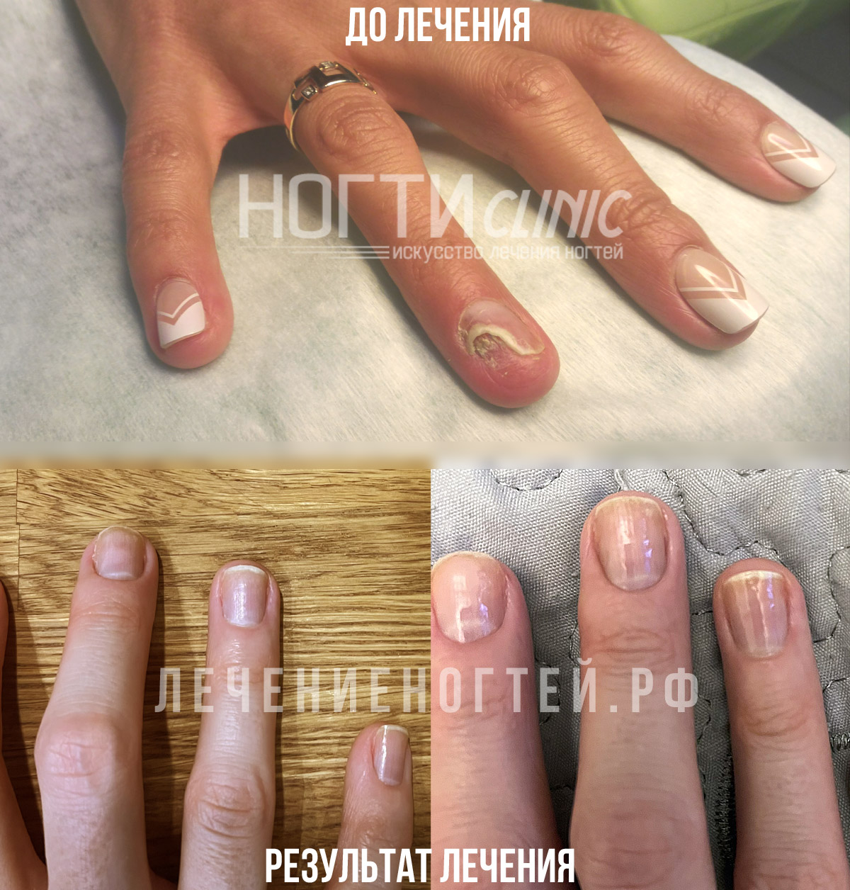 Отзывы Ляшко А К Ногти Клиник
