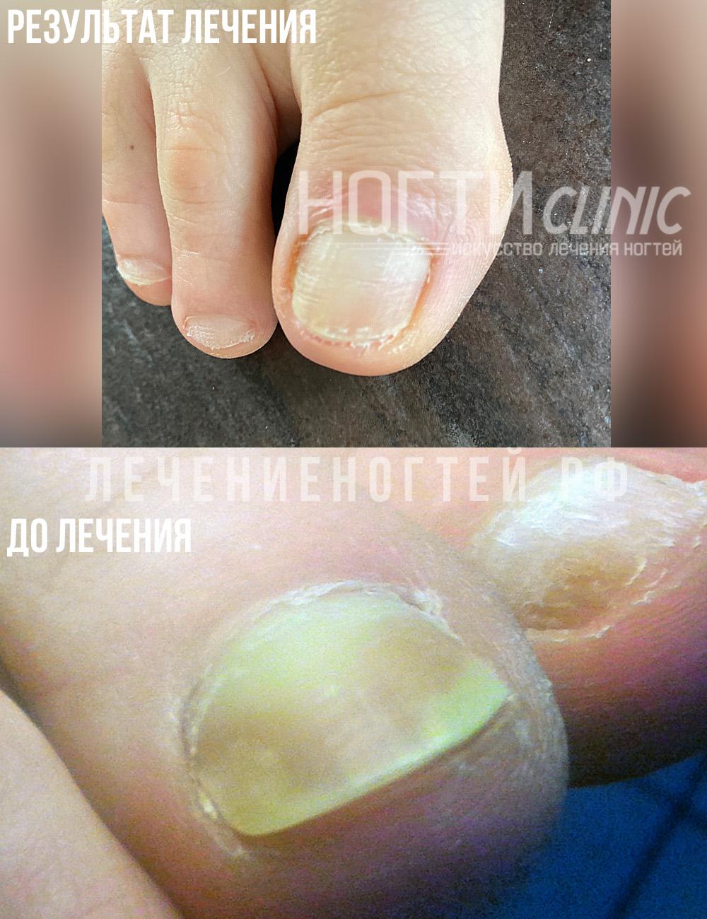 Ляшко А А отзывы ногти клиник