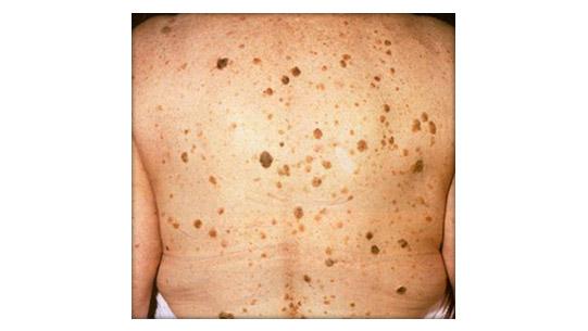 фото папилломы на спине